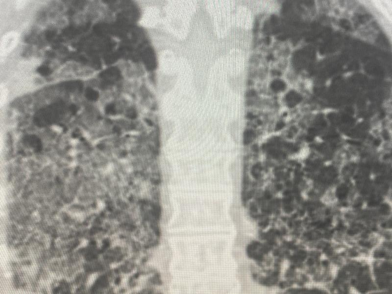 X-ray of spine and lungs
