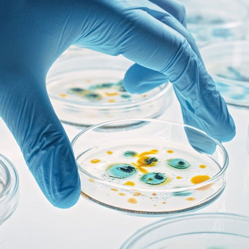 Gloved hand holding a petri dish with blue and yellow cells